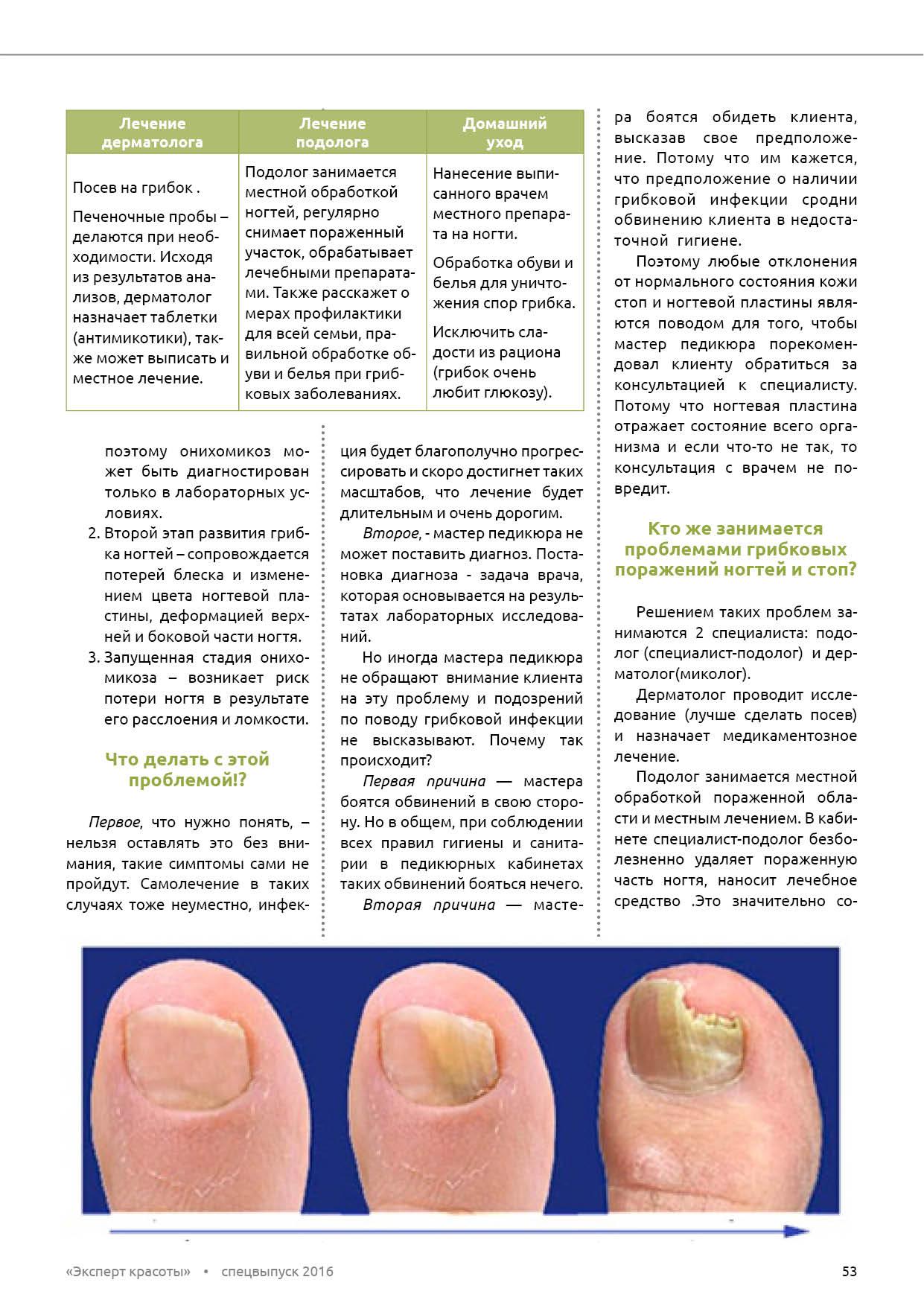 Онихолизис - лечение различными способами 88